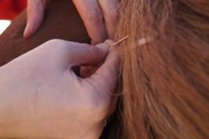 dry needling 3